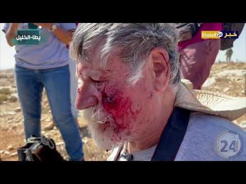 اصابة عشرات المواطنين والمتضامنين خلال قمع قوات الاحتلال مسيرة سلمية في مسافر يطا جنوب الخليل