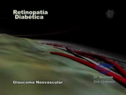 Fagioli nel diabete di tipo 2, che può essere