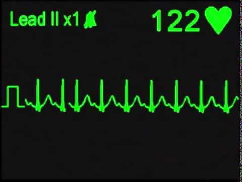 Diagnóstico para la hipertensión