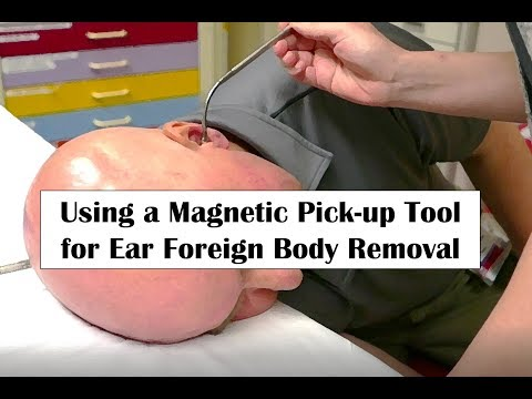 Using a Magnetic Pick-up Tool for Ear Foreign Body Removal