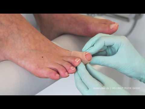 Leczenie kość stopy leków kciuka