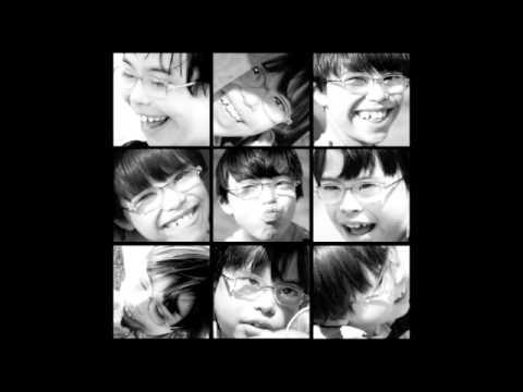 Watch videoSindrome da Down: Projeto 21