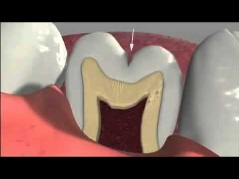 What is a Dental Sealant?