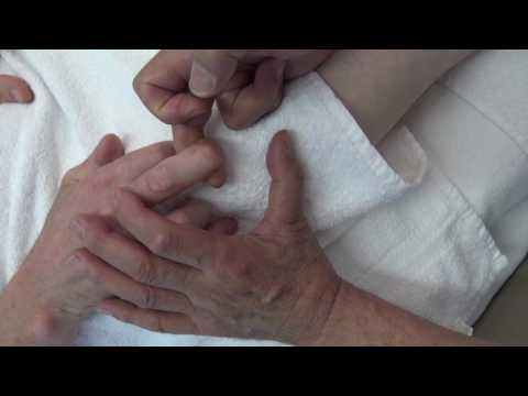 Knie mit Osteoarthritis des Knies Preis Chelyabinsk