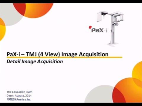 TMJ(4View) Acquisition
