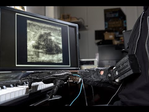 Bionic hand made possible by ultrasound technology