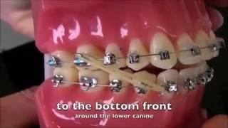 How to use Elastics - Orthosmile Antelias Lebanon - Dr Joe Kharma