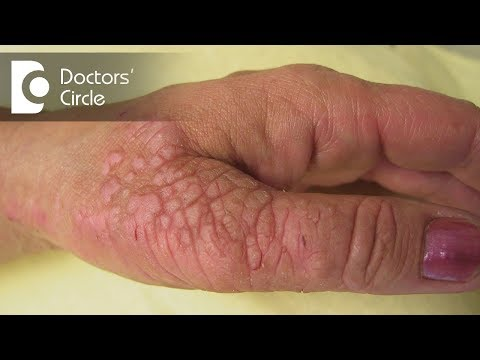 Neurodermatitis allergico su mani