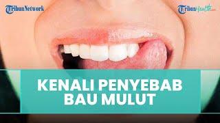 Penyebab dan Cara Mengatasi Bau Mulut Menurut drg. R. Ngt. Anastasia Ririen Pramudyawati