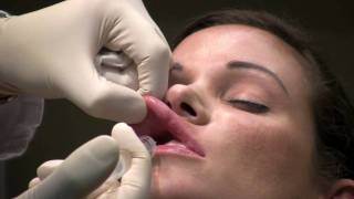 Dental Block Lip Numbing for Lip Augmentation