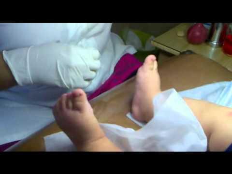 La clínica curar la uña encarnada