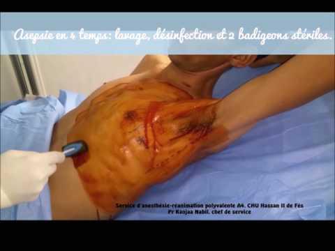 Luxation der Knie Klinik