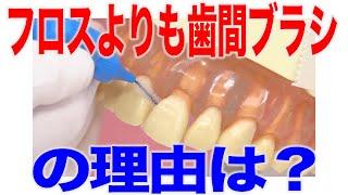 高齢の方にはフロスよりも歯間ブラシを