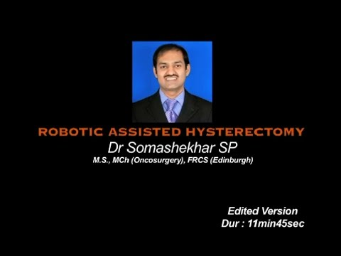 Robotic Assisted Radical Hysterectomy Patient 2