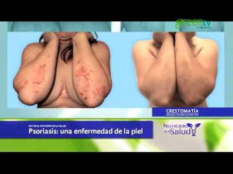 El tratamiento contra la psoriasis en de primavera