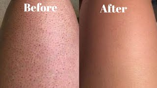 How to get rid of strawberry legs and ingrown hairs fast