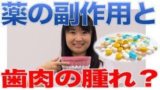 歯ぐきは薬の副作用で腫れることもある?