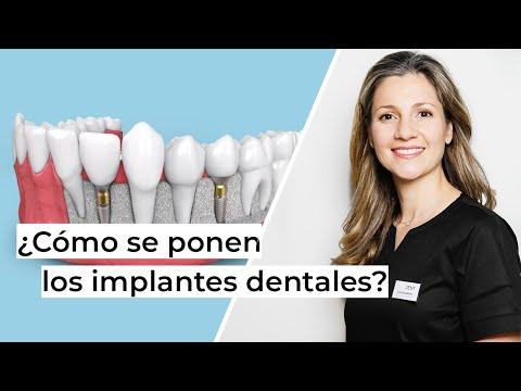 ¿Cómo se ponen los implantes dentales paso a paso? | Clínica dental en Alcobendas Avodent