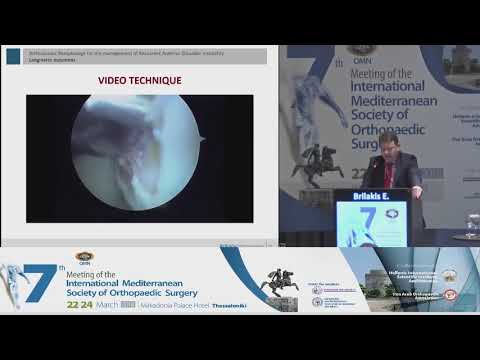 Brilakis E - Arthroscopic Remplissage for the management of reccurent anterior shoulder instability