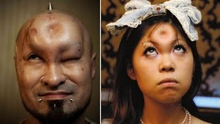 Japanese Bagelheads: most extreme beauty trend? - Video Youtube