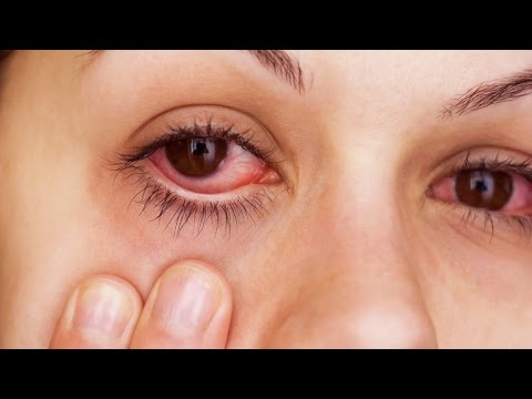 Video How To Instantly Relieve Itchy/Irritated Allergy Eyes!!