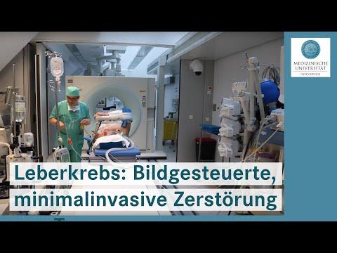 Die Behandlung des Halses der Manualtherapie