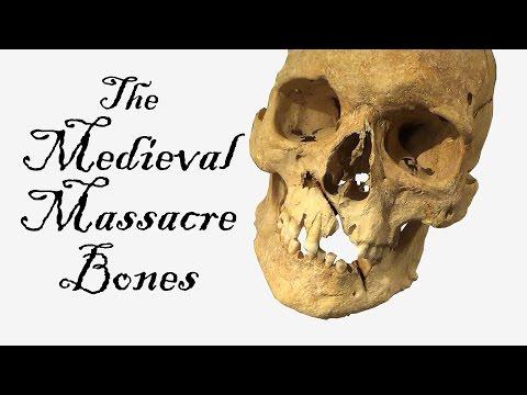 Medieval massacre bones