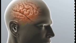 MeningiomaVideo In India