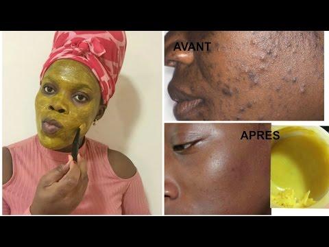 Le masque après le nettoyage de la personne pour la peau problématique
