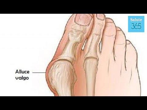 Alflutop nellarticolazione del ginocchio