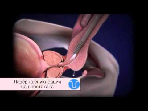 Москва рак на простатата
