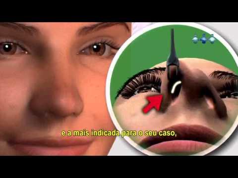Rinoplastia em Manaus (Cirurgia Plástica do Nariz) - Rooney