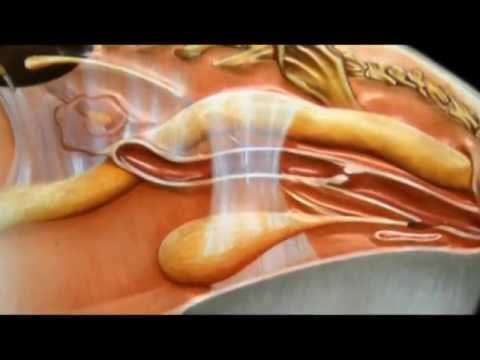Masaža prostate na Kavkazu
