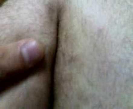 Goccia di sangue in passaggio posteriore dopo defecazione