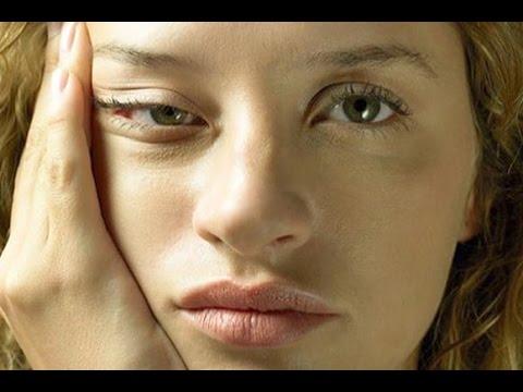 Как избежать морщины вокруг глаз