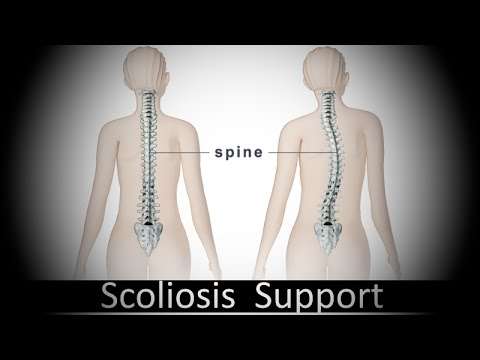 Lfk a scoliosis a un kifoza