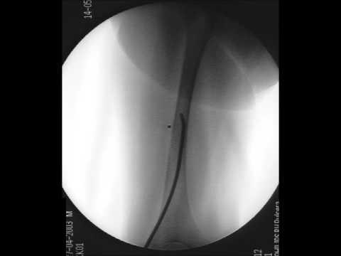 Die Absetzung der Halswirbel tut der Hals sehr weh