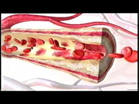 Hipertoniczny roztwór w leczeniu ropiejących ran