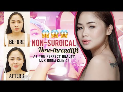 Nose-Thread Lift Procedure and Interview with Doctor Erwin Macaraeg ✨