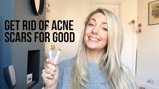 HOW TO COMPLETELY GET RID OF ACNE SCARS: DERMAROLLING/MICRONEEDLING