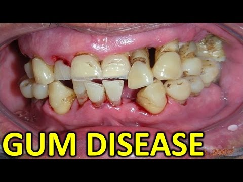 Video Gum Disease:Periodontal/Gingivitis (Gum) Disease: Causes, Symptoms, and Treatments