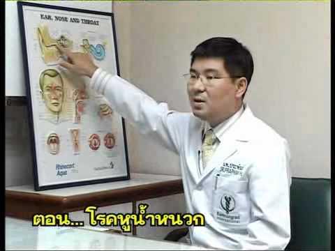 โรคสะเก็ดเงินโรคสะเก็ดเงิน palmoplantar Barbera