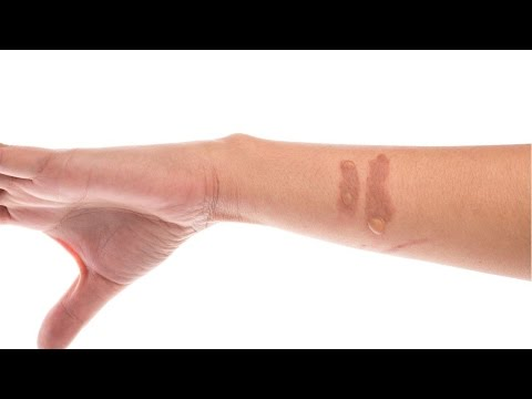 Video Home Remedies for Minor Burns | treatment for burns