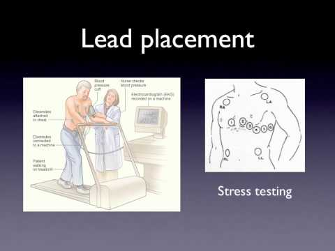 Patient Care section of the NHA EKG Tech exam - YouTube