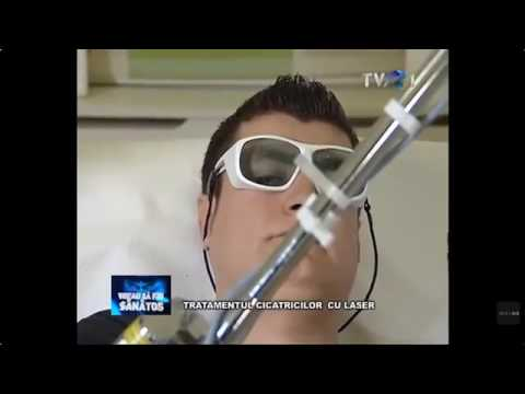 Cum putem scapa de cicatrici prin tratament cu laser?