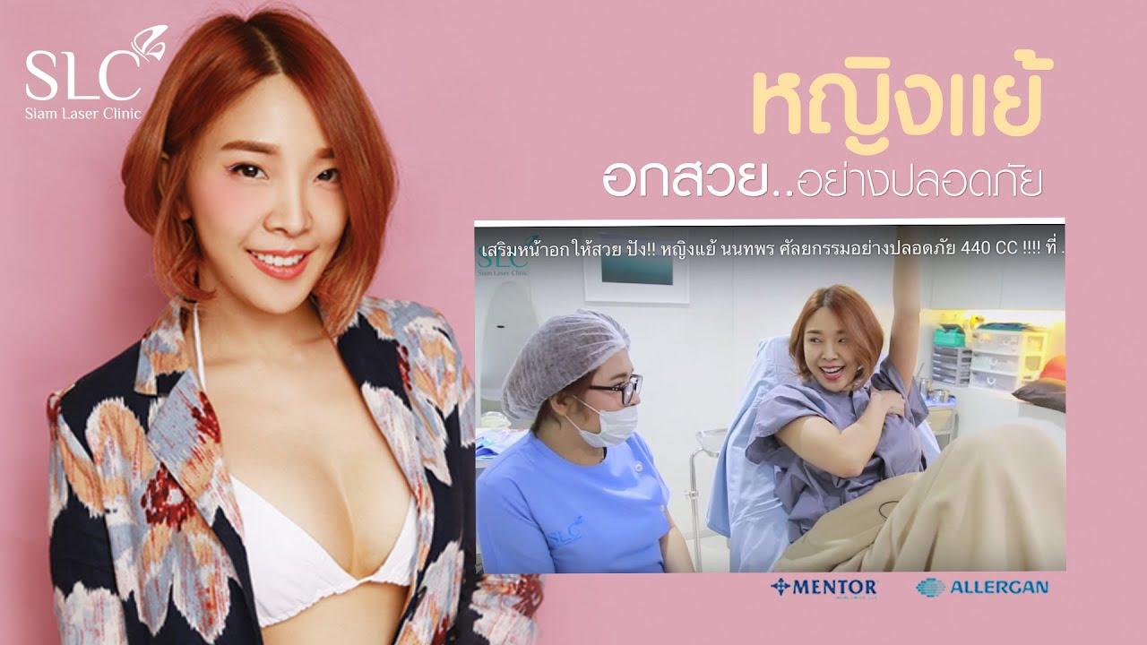 เสริมหน้าอกให้สวย ปัง!! หญิงแย้ นนทพร ศัลยกรรมอย่างปลอดภัย 440 CC !!!! ที่ SLC clinic