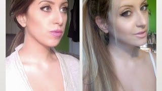 My Jaw Surgery (Before and After)