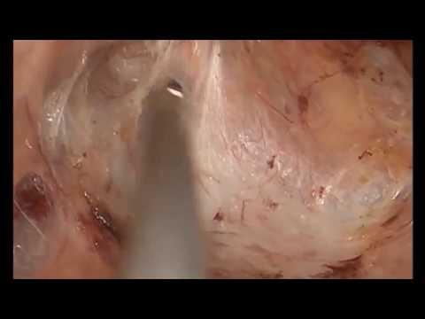 Лечение выпадения прямой кишки. Лапароскопическая ректопексия