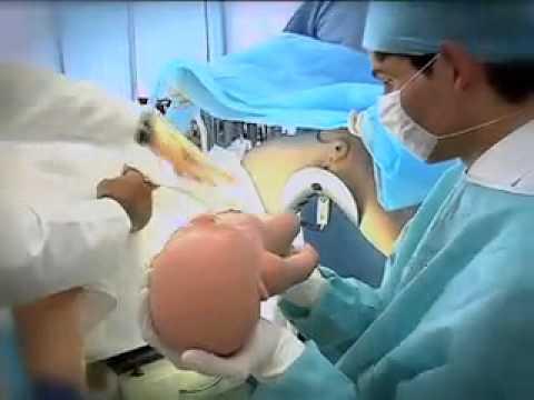 Tratamentul artrozei cu Argo