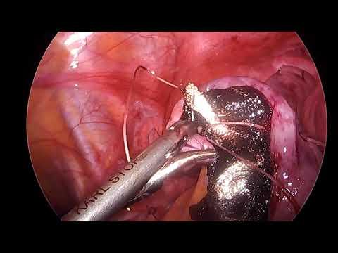 Resekcja torbieli jajnika - zakładanie szwu